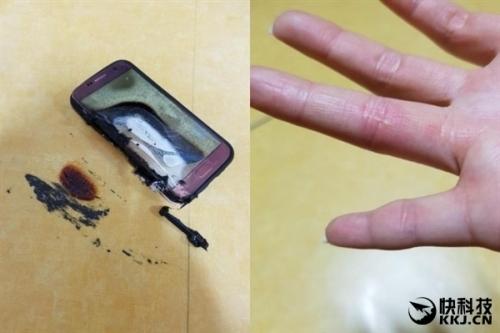 三星Galaxy S7突然自燃:20岁姑娘被烧伤
